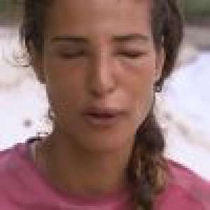 Cassandre (Koh-Lanta) méconnaissable après une piqûre : Les images choc !
