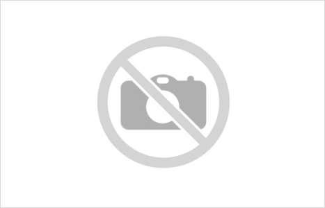 La course à pied pourrait aider à réparer certains types de dommages cérébraux