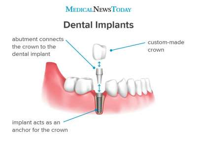 Medical News Today: What to know about dental implants