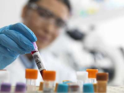 Medical News Today: Breast cancer: An innovative blood test could aid early detection
