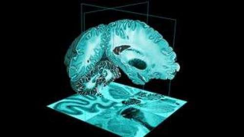 BigBrain, l'atlas 3D haute résolution du cerveau humain