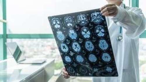 Quels impacts du SARS-CoV-2 sur le cerveau ?