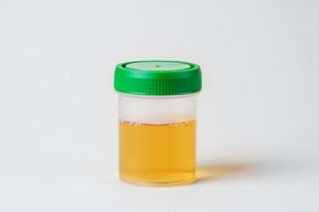 En vidéo : que révèle la couleur de l'urine sur votre santé ?