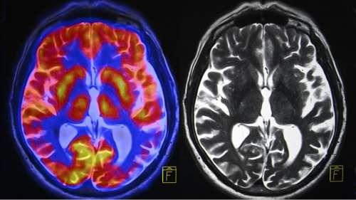 Covid-19 : cette étude montre que le virus peut infecter les cellules du cerveau humain