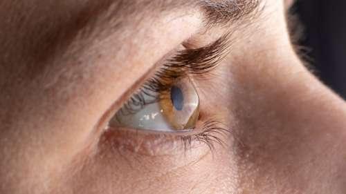 Les lésions nerveuses de la cornée seraient un signe de Covid long, selon cette étude