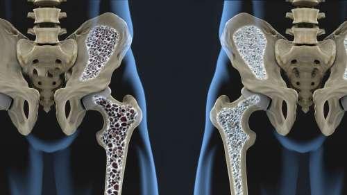 L'acétate de sodium permettrait de traiter efficacement l'ostéoporose