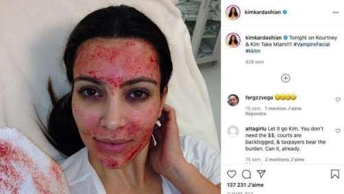 Astuces beauté de stars. Kim Kardashian : qu'est ce que le vampire lift ?