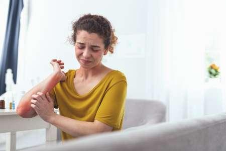 Psoriasis, eczéma : 4 exercices de sophro pour apaiser les démangeaisons