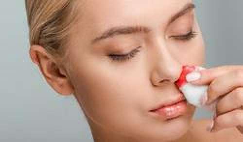 Nez qui saigne = tension artérielle trop élevée ?