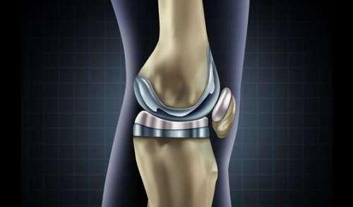 Prothèse de genou ou de hanche : quelle durée de vie ?