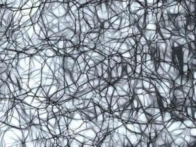 Un nouveau test pourrait détecter la maladie d'Alzheimer 20 ans avant qu'elle ne se déclare