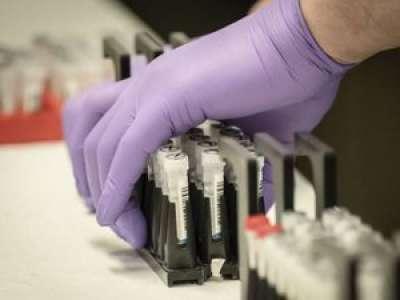 Laboratoire AstraZeneca : un premier candidat au test du vaccin contre le coronavirus est décédé
