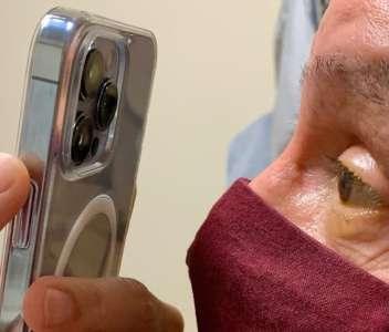 Un médecin utilise le mode macro de l'iPhone 13 Pro sur ses patients