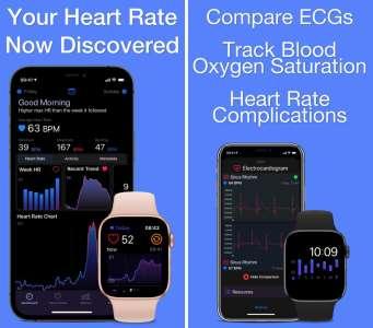 Heart Analyzer s'offre une grosse mise à jour sur Apple Watch