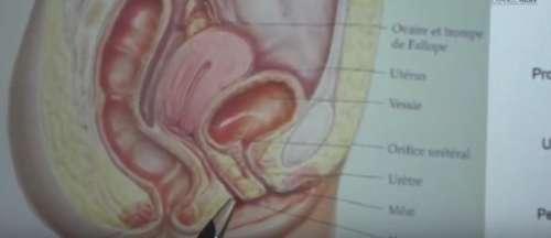 L'infection urinaire est-elle contagieuse lors d'un rapport sexuel ? Quels sont les symptômes ? Voici les réponses !