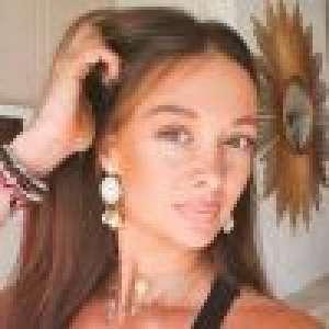 Alexandra (Koh-Lanta), une cicatrice à cause du jeu : photo de cette trace qui signifie beaucoup...