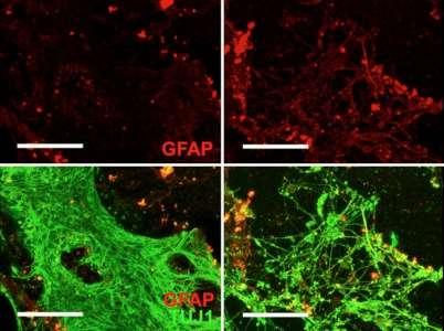 Le virus de l'herpès provoque des signes de maladie d'Alzheimer dans les cellules du cerveau @TrustMyScience