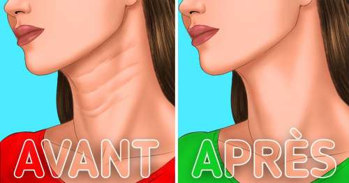 6 Conseils pour faire disparaître les rides de ton cou