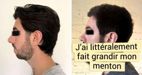 15 Photos qui prouvent qu'une barbe peut aussi bien changer l'apparence que la chirurgie esthétique