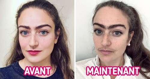 Cette femme qui a cessé de s'épiler le visage raconte à quel point cela a changé sa vie