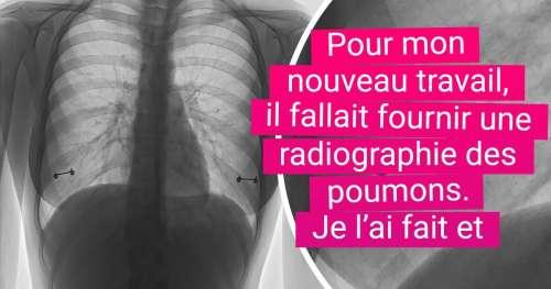 19 Choses que seuls les rayons X sont capables de nous montrer