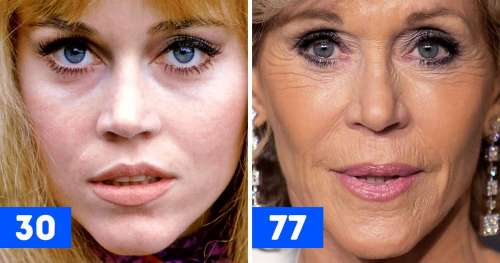 20 Comparaisons de gros plans de célébrités qui montrent comment elles ont changé avec le temps