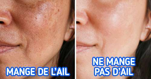 Les causes de la pigmentation de la peau et 4 façons de l'éviter