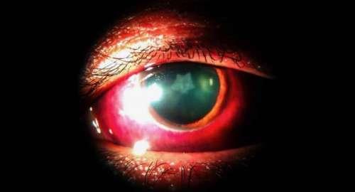 Il développe une cataracte en forme d'étoile après une blessure à la tempe