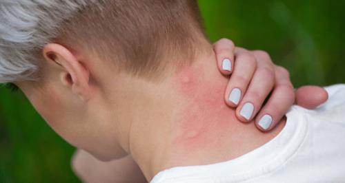 Ça gratte ! 13 astuces pour calmer une piqûre de moustique