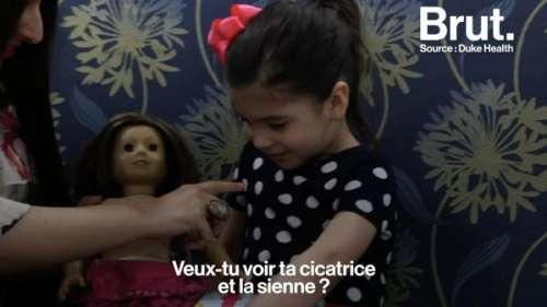 VIDEO. Des poupées avec des cicatrices pour aider les enfants à se sentir moins complexés