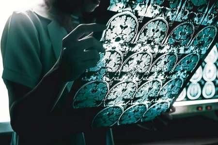 Maladie d'Alzheimer. Bientôt un médicament efficace contre les symptômes?