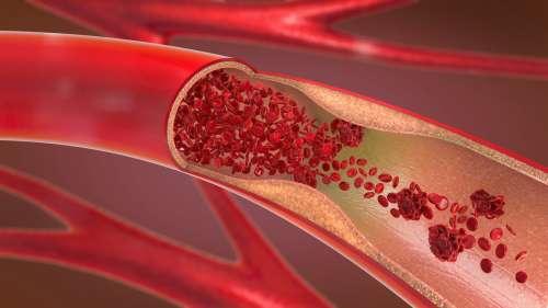 Covid-19 : plusieurs patients jeunes et guéris développent des embolies pulmonaires