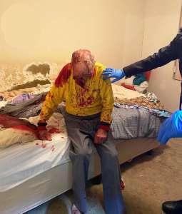 Un homme de 84 ans est placé dans le coma artificiel à cause d'une attaque sauvage dont il a été victime