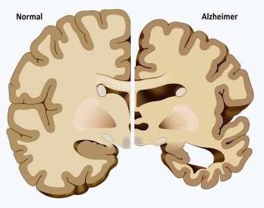Voici comment protéger votre cerveau d'Alzheimer, de la dépression, de l'anxiété et bien plus encore