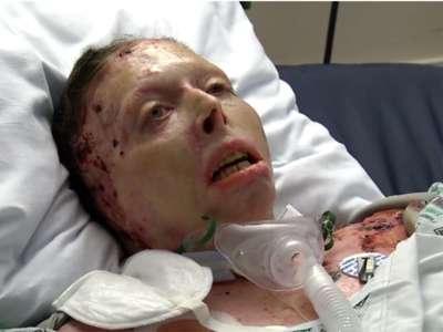 Il y a deux ans, son ex-petit ami l'a aspergée d'essence et l'a incendiée. Aujourd'hui, elle est décédée après de grosses souffrances
