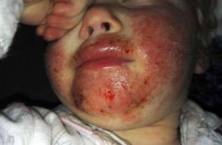 Cette petite fille a le visage en sang après avoir reçu un baiser