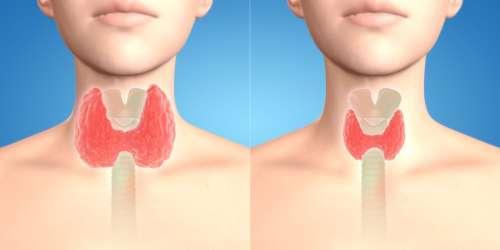 La différence entre l'hypothyroïdie et l'hyperthyroïdie et les habitudes à prendre pour prévenir ces troubles